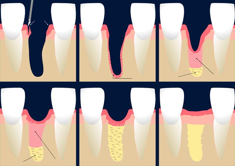 Zahnfleisch züchten als Basis für ein fest sitzendes Implantat. Grafik © Hediye Hackenberg