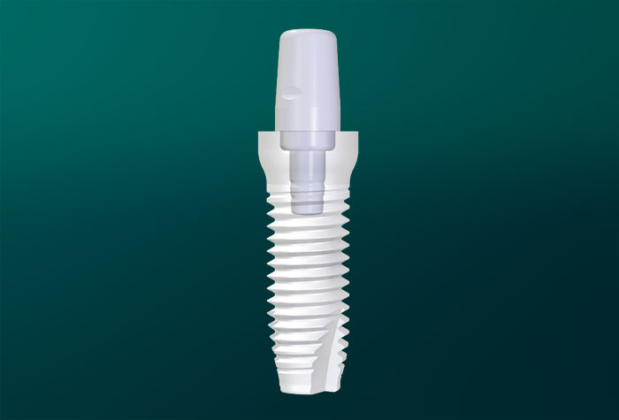 Weißes Implantat. Grafikvorlage Zirkolith ®