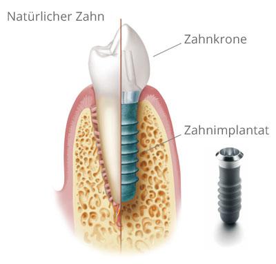 Querschnitt: Natürlicher Zahn und Implantat mit Krone. Grafik mit Materialien © Institut Straumann AG, 2013