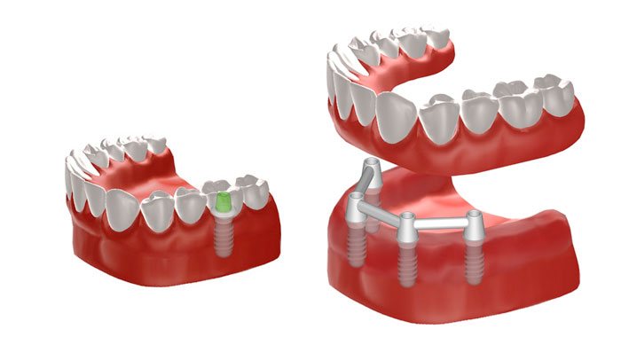 Grafik Implantate zur Befestigung einer Vollprothese und einer einzelnen Krone. © Institut Straumann AG